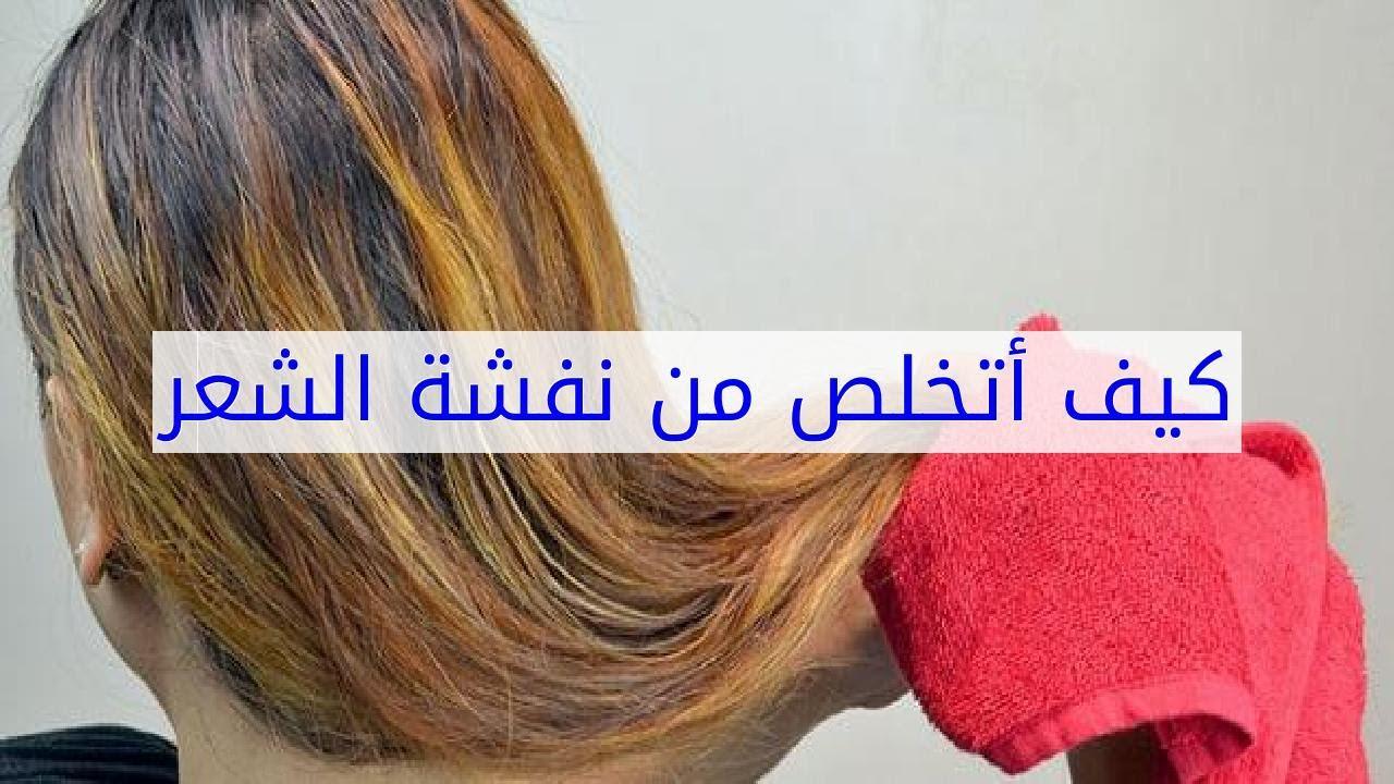 صورة علاج نفشة الشعر , علاج هيشان الشعر