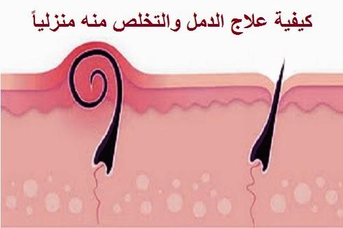 صور علاج حب المؤخرة , علاج ظهور الدمامل في المؤخرة