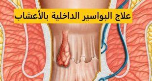 صور علاج البواسير الداخلية بالاعشاب , علاج البواسير الداخلية طبيعي