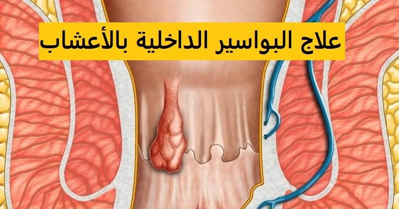 صورة علاج البواسير الداخلية بالاعشاب , علاج البواسير الداخلية طبيعي