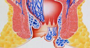 صورة علاج حرقان البراز بالاعشاب , وصفات طبيعية لعلاج حرقة الشرج
