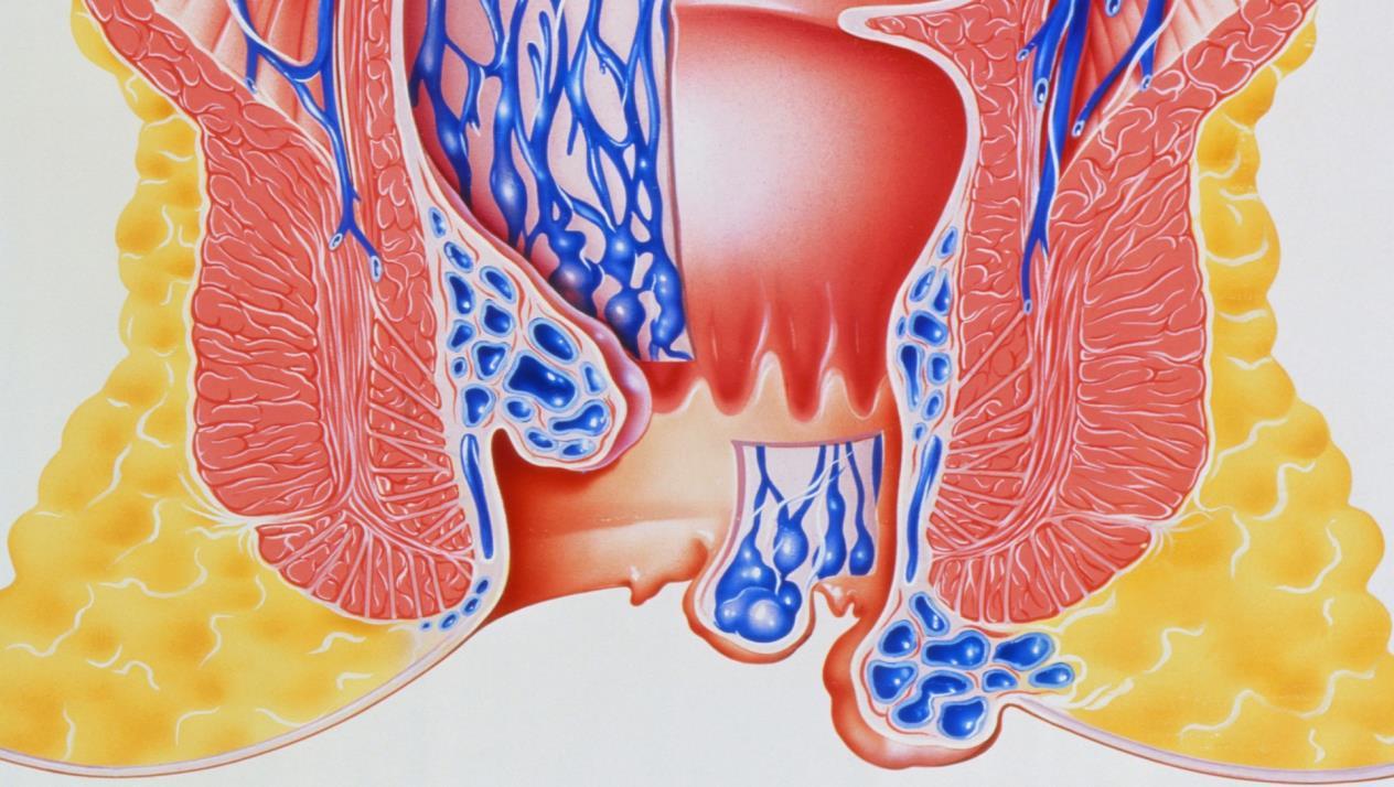 صور علاج حرقان البراز بالاعشاب , وصفات طبيعية لعلاج حرقة الشرج