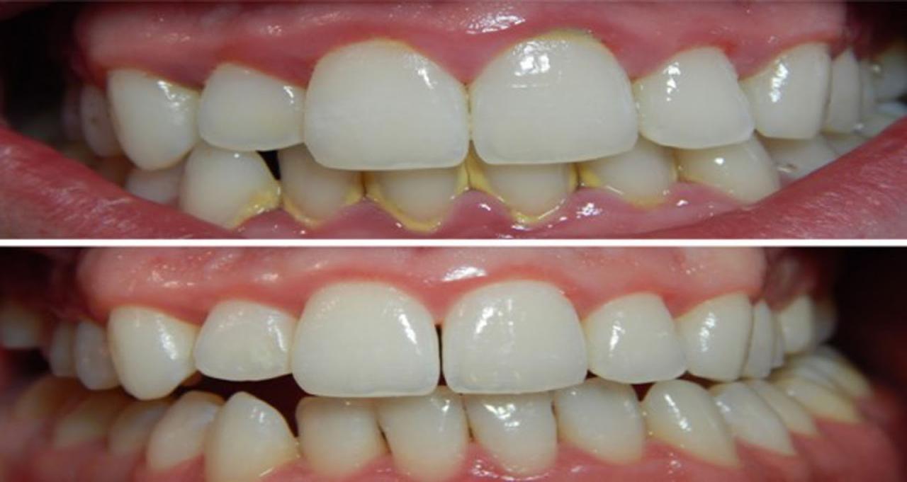 صورة التخلص من جير الاسنان , كيف تزيل جير اسنانك بدون طبيب