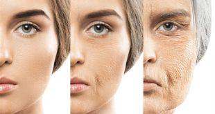 صورة تجاعيد الوجه بعد الاربعين , افضل وصفة لعلاج التجاعيد بعد الاربعين