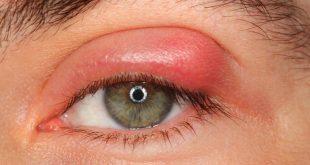 حافظ علي العين من الألتهابات ,التهاب العين علاج