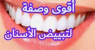 صورة وصفة لتبيض الاسنان,نفسك اسنانك تبيض 6752 1 310x165
